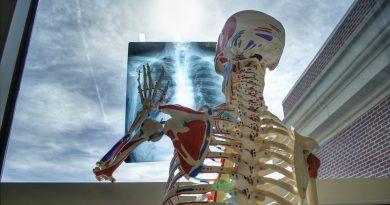 Prevenire le fratture con l'intelligenza artificiale sarà meno costoso che curarle